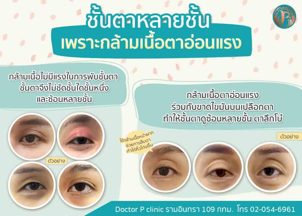 ชั้นตาหลายชั้นเกิดจากสาเหตุใด?