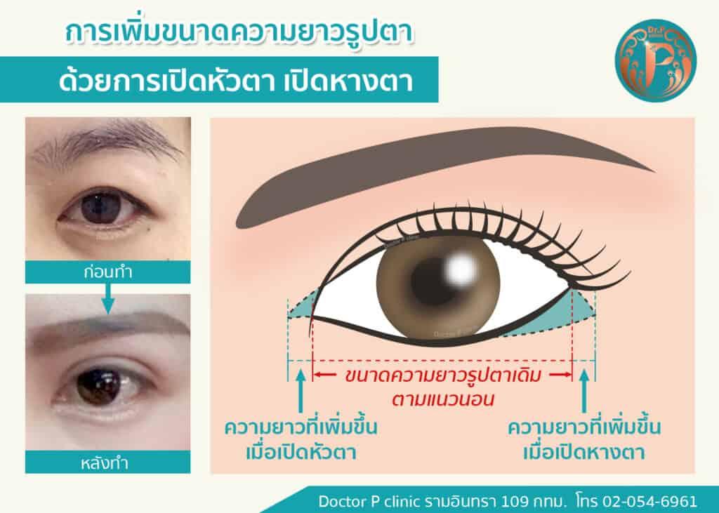 เปิดหัวตา เปิดหางตา